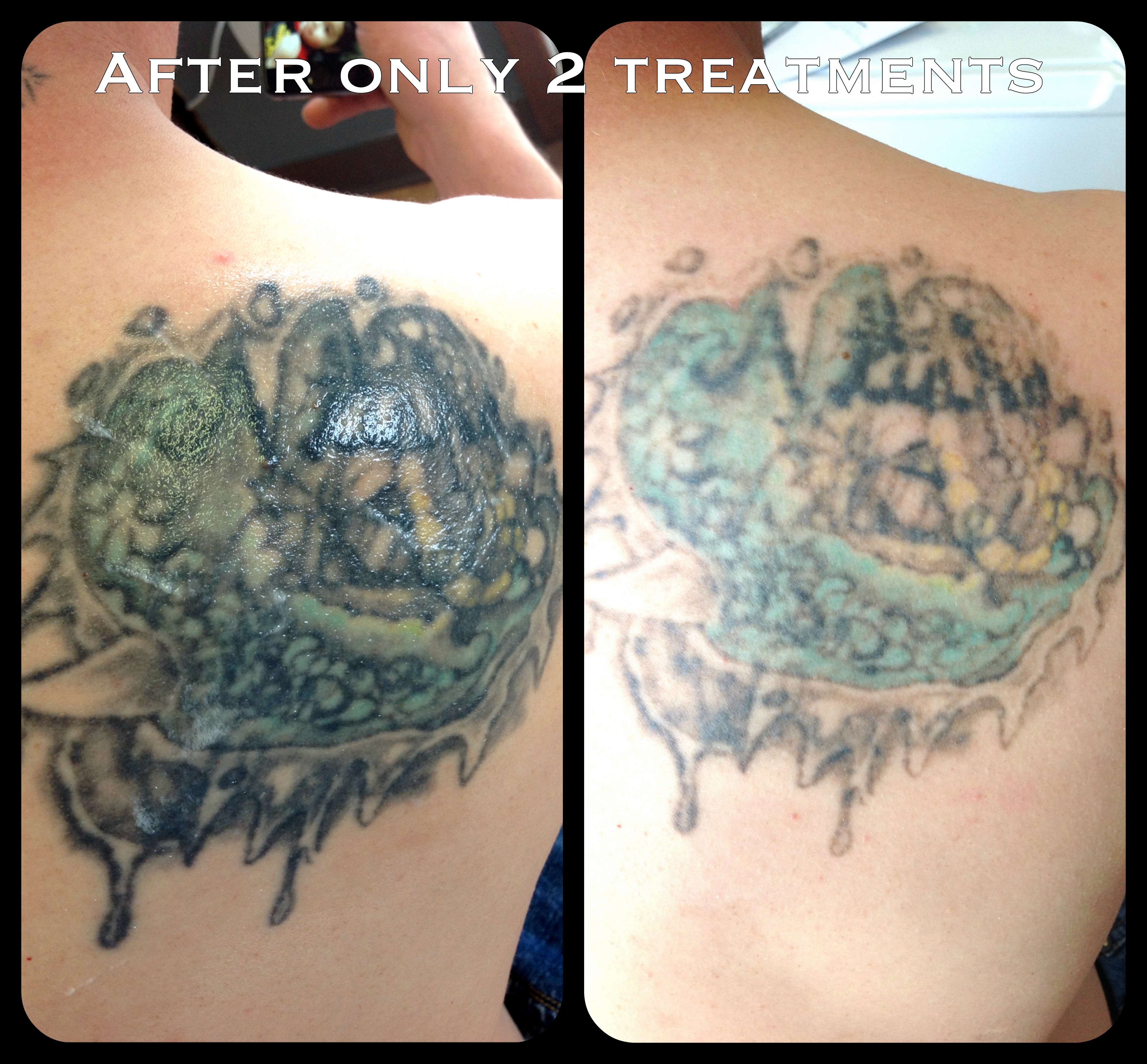 ... before and after photo of a multi colored tattoo after 2 treatments