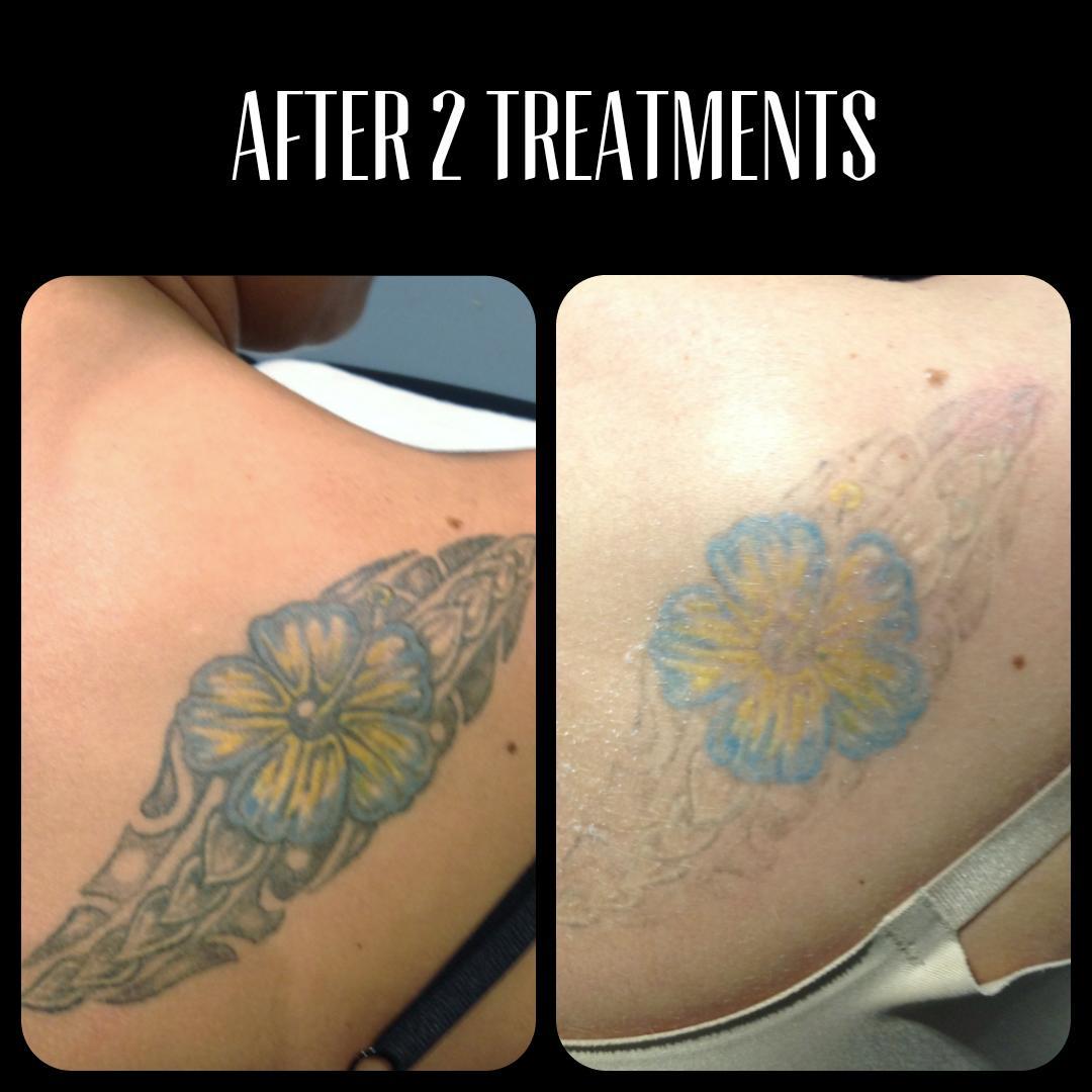 Blue ink tattoo removal in Portland Oregon – cascadelaserblog