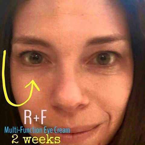 Redefine Eye Cream Review Rodan And Fields Reverse Eye Cream