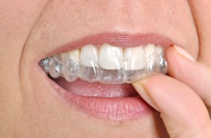 Invisalign and Braces